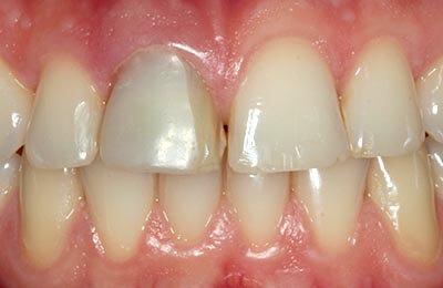 Praxis Dr. Zwanzig: Verfärbter Zahn 11 mit unansehnlicher Kunststofffüllung