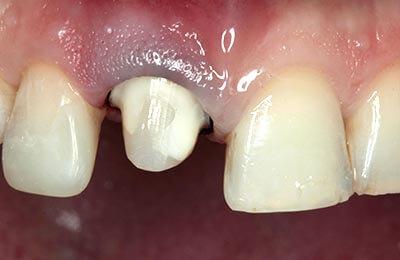 Praxis Dr. Zwanzig: Zahnstumpf nach internem Bleichen und adhäsivem Aufbau