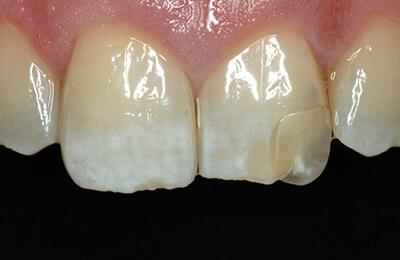 Ästhetische Korrekturen: Unbefriedigende Ästhetik Zahn 21 durch schlecht sitzendes Veneer