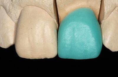 Ästhetische Korrekturen: Aufgewachste Situation durch den Zahntechniker