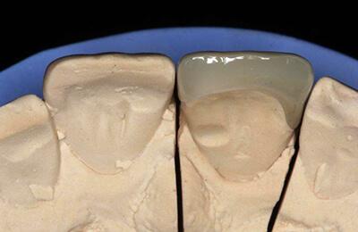 Ästhetische Korrekturen: Fertiges Veneer auf dem Modell von der Gaumenseite