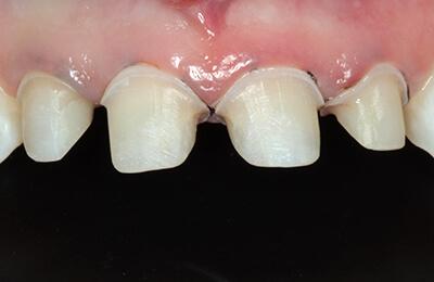 Überkronung Bielefeld: Minimale Präparation der Zähne für 360 Grad Veneer