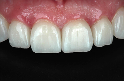 Überkronung Bielefeld: Fertige vollkeramische Versorgung mit reizfreiem Zahnfleisch