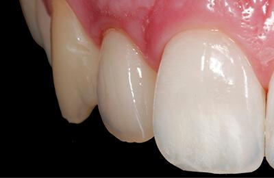 Bielefeld Implantate: Implantatkrone im Mund verklebt