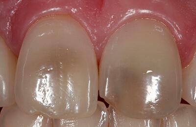 Bielefeld Implantate: Die stark verfärbten mittleren Schneidezähne im Oberkiefer
