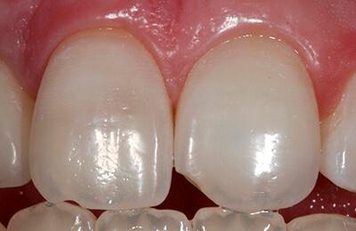 Bielefeld Implantate: Die ursprüngliche Zahnfarbe konnte wieder erreicht werden