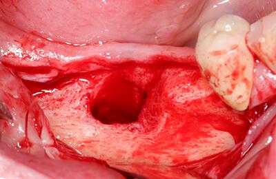 Komplexe Fälle: Nicht ausgeheilter Knochen nach der Zahnentfernung