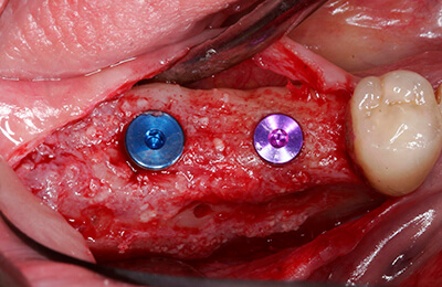 Komplexe Fälle: Stabiler Knochen nach sechs Monaten