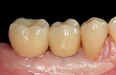 Komplexe Fälle: Fertige Keramikkronen auf den Implantaten