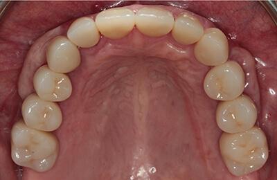 Komplexe Fälle: Kronen nach der Verklebung im Mund