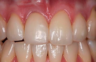 Zahnfleischchirurgie Bielefeld: Reizfreie Verhältnisse nach Einsetzen des Provisoriums