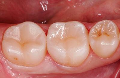 Zahnarztpraxis Bielefeld: Fertig ausgearbeitet und polierte Füllung