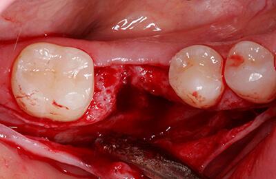 Implantologie Bielefeld: Großer Knochendefekt