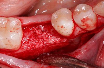 Implantologie Bielefeld: Zustand nach Verschweissung der Membran und Defektfüllung