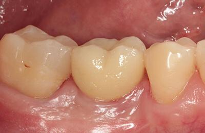 Implantologie Bielefeld: Raum zu erkennende Restauration nach dem Verkleben im Mund