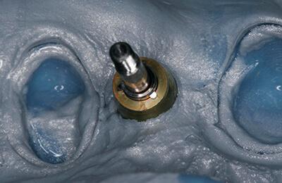 Implantologie Bielefeld: Silikonabformung für die Kronen