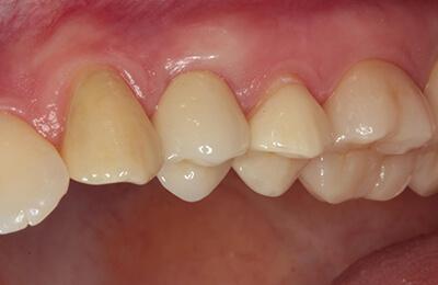 Implantologie Bielefeld: Fertige perfekte Arbeit mit reizfreiem Zahnfleisch