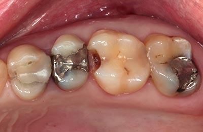 Zahnarztpraxis Bielefeld: Unansehliche Füllungen mit kariöser Zahnsubstanz