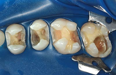 Zahnarztpraxis Bielefeld: Zähne unter Kofferdam nach Entfernung der Karies