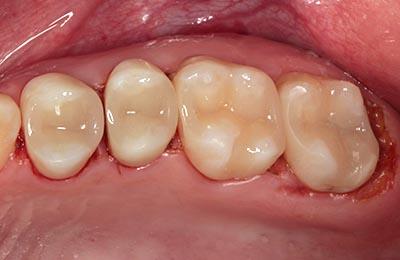 Zahnarztpraxis Bielefeld: Kompositfüllungen nach Hochglanzpolitur