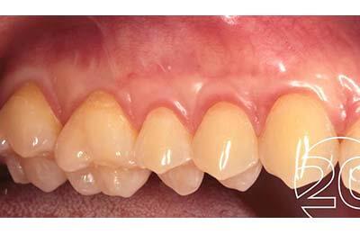Zahnfleischchirurgie Bielefeld: Vollständig gedeckte Rezessionen mit stabilem Weichgewebe