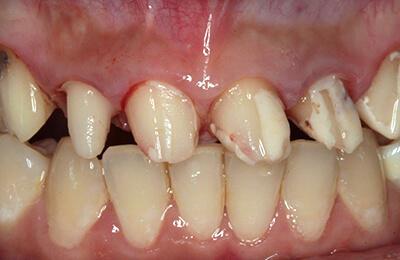 Zahnprothetik Bielefeld: Man erkennt die schlechte und nicht achsengerechte Präparation