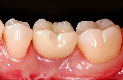 Implantate :Reizfreies Zahnfleisch mit hochästhetischer Krone