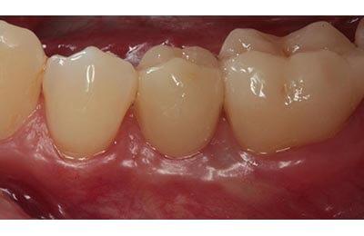Implantat Dr. Zwanzig Bielefeld