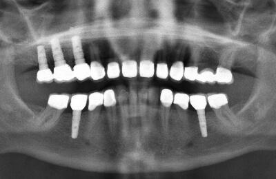 Komplexe Fälle: Röntgenkontrolle