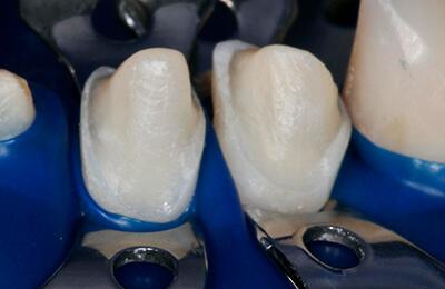 Komplexe Fälle: Veneerpräparation für die Unterkieferschneidezähne