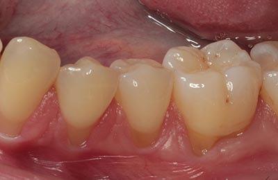 Zahnfleischchirurgie Bielefeld: Freiliegende Wurzeloberflächen durch starken Zahnfleischrückgang