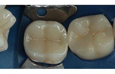 Zahnarztpraxis Bielefeld Zahnfüllungen