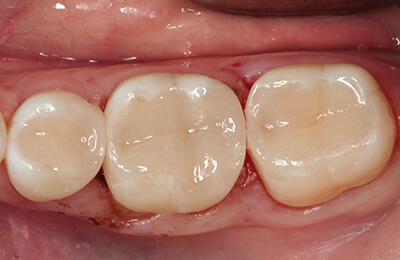 Zahnarztpraxis Bielefeld: Füllungen direkt nach der Politur