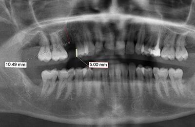 Zahnimplantat: Digitale Längenmessung fehlender Zahn 15