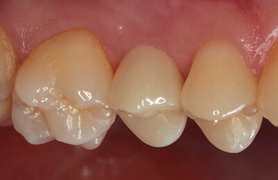 Zahnimplantat Bielefeld