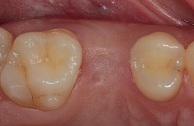 Zahnimplantat Dr. Zwanzig Bielefeld