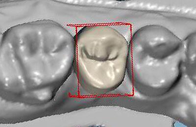 Zahnimplantat: Computergenerierte Krone auf Implantat 15