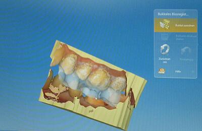 Zahnkronen Bielefeld: CAD-Programm für das Kronendesign