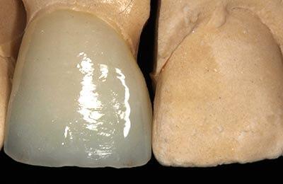 Zahnarzt Bielefeld: Die Vollkeramikkrone auf dem Modell