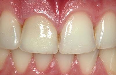 Zahnarzt Bielefeld: Perfekte Ästhetik direkt nach dem Eingliedern der Krone