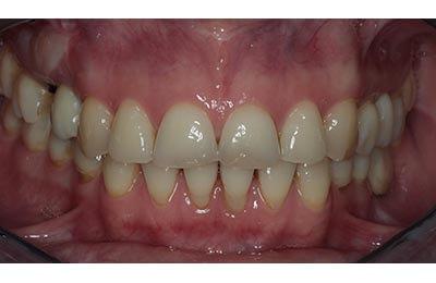 Zahnarztpraxis Dr. Zwanzig: Ästhetische Korrekturen