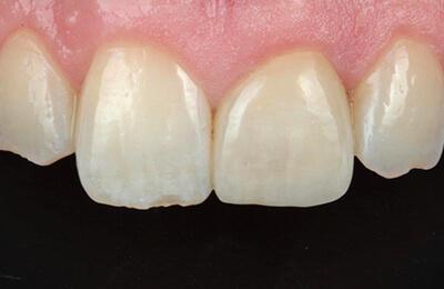 Ästhetische Korrekturen: Verklebtes Veneer im Mund des Patienten. Perfekte Ästhetik!