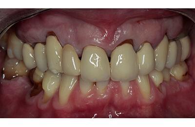 Zahnarztpraxis Dr. Zwanzig: Komplexe Fälle