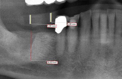 Komplexe Fälle: Präoperatives Röntgenbild
