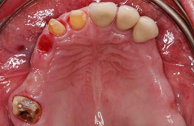 Komplexe Fälle: Sehr wenig Knochen im Oberkiefer