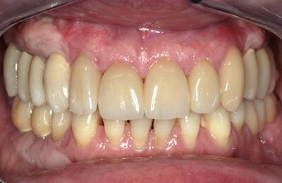 Komplexe Fälle: Komplexe Versorgung in Vollkeramik auf Zähnen und Implantaten