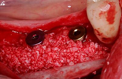 Komplexe Fälle: Inserierte Implantate mit Knochenaufbau