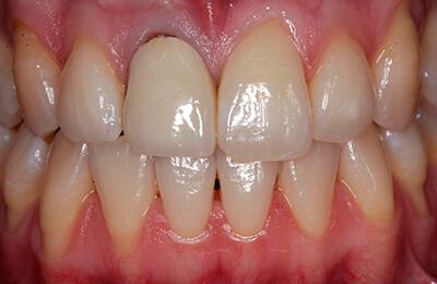 Zahnfleischchirurgie Bielefeld: Schlecht sitzende Krone Zahn 11 und starker Zahnfleischrückgang