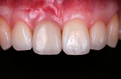 Zahnfleischchirurgie Bielefeld: Vollständig gedeckte Rezessionen – Vollkeramikkrone auf Zahn 11