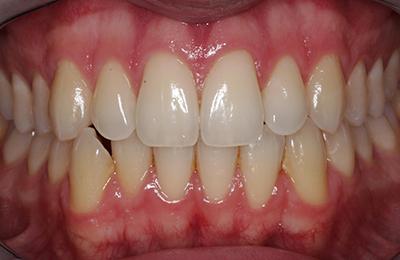 Bielefeld Bleaching: Ausgangssituation nach Zahnreinigung